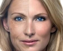 Staranje kože lahko blažimo